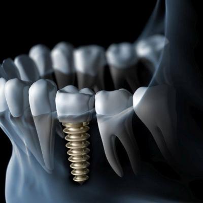 Milyen előnyei vannak a fogászati implantátumoknak a protézissel szemben?