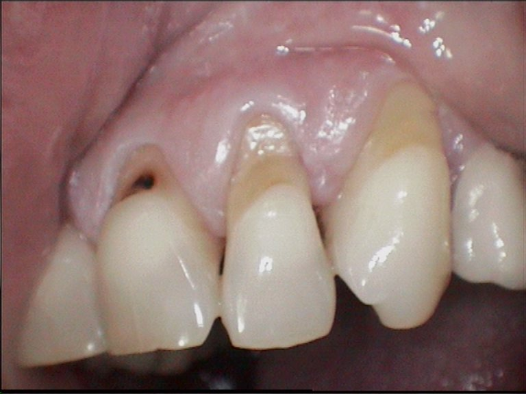 Replacement of filling on the tooth neck