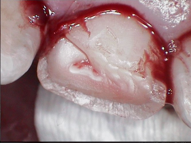 Fractured tooth pasting back