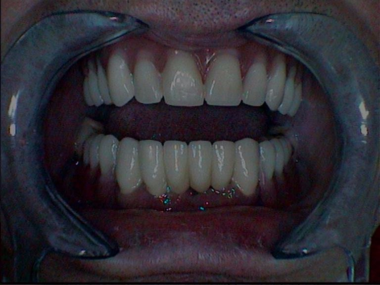 Combined lower row of teeth