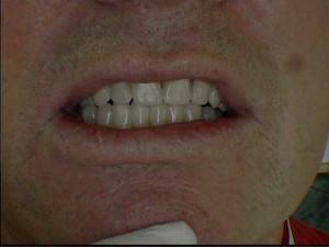 Kombinált alsó fogsor
