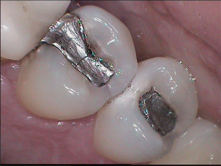Replacement of amalgam filling (2)