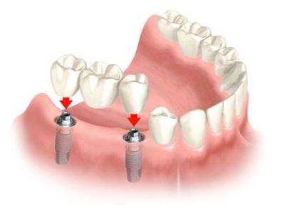 Mikor válasszunk fogimplantációt?