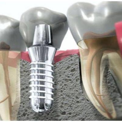 """Hogyan lehet """"visszanöveszteni"""" a foghiány miatt elsorvadt csontot?"""