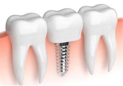 Mik a titánium implantátumok előnyei?